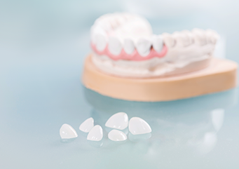 Why choose extraction-free braces?