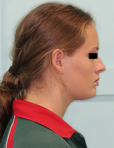 TMJ Treatment Kawana, Sunshine Coast